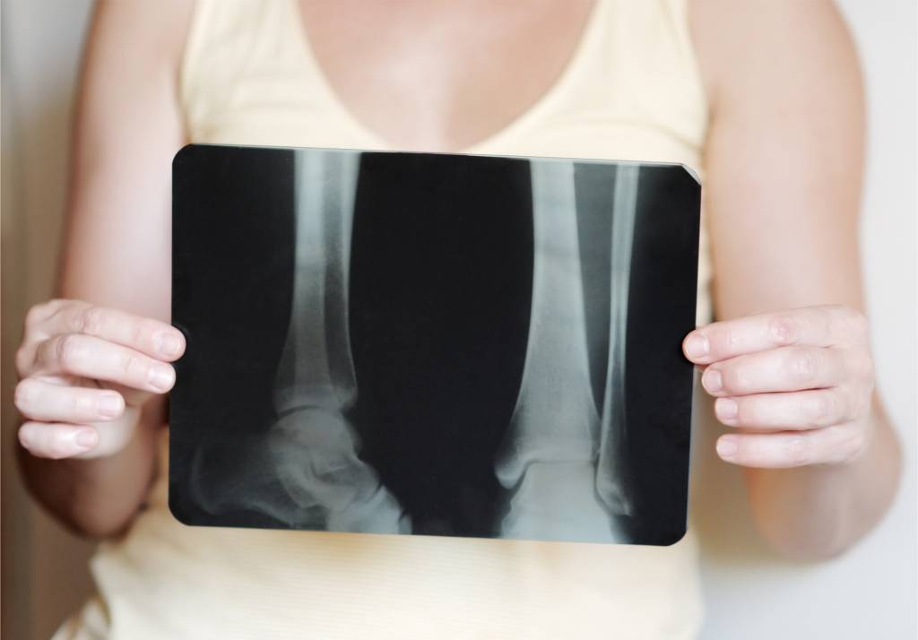 osteoporosi-sintomi-cause-cure